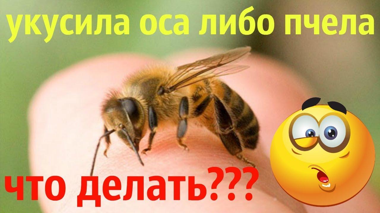 Что делать, если вас укусила пчела или оса?